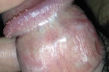 冠状沟珍珠疹图片_【ESkin - 皮膚璺到底】